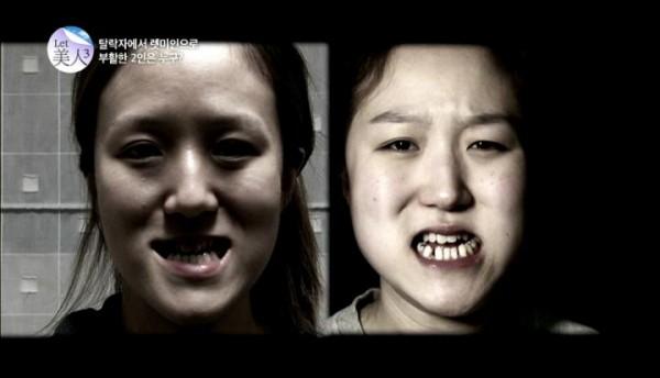震驚! 南韓逆轉命運的整形 醜姐妹花大變身