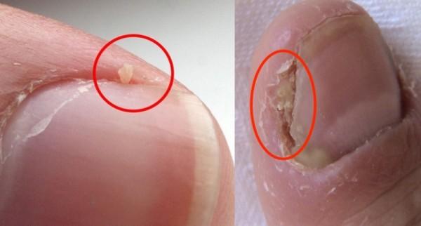 看到手指肉分岔就會受不了,撕到手血流不止還是停不下來!沒想到這是一種很嚴重的病,多數人卻忽略一生!