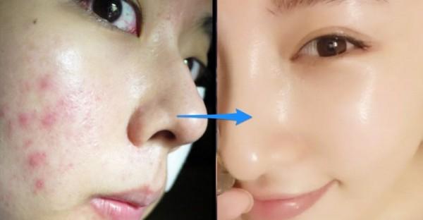比敷面膜還有效 6倍的方法,一天只要 1分鐘,照著做痘痘、皺紋全都不見了!