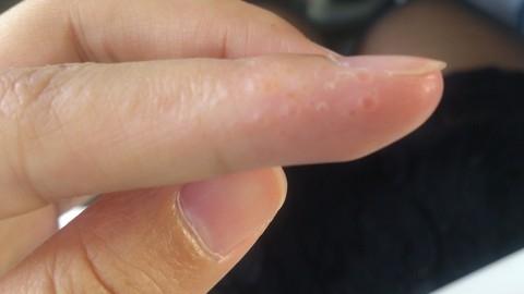 檢查看看,你的掌心或手指側面也會長出「西米露」嗎?這其實是大病的前兆,這真的不能輕忽啊!