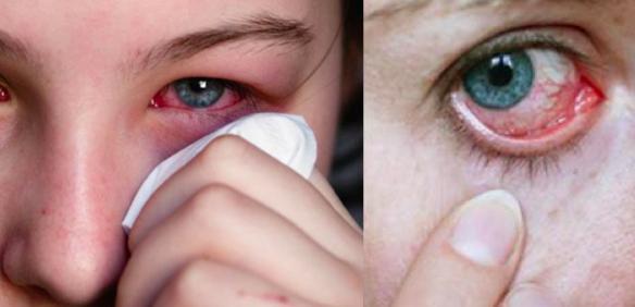 常會感到眼睛疲勞、視力減退是因為「視紫質」不足,多吃這7種水果就可以「把營養吃回來」!
