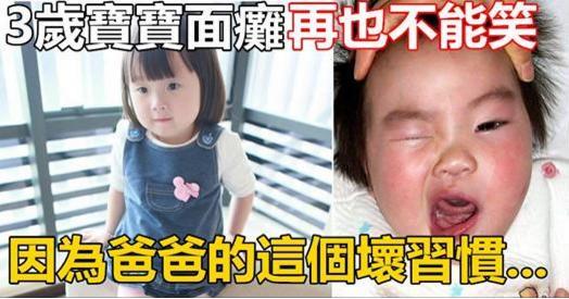 3歲寶寶面癱再也不能笑,竟是因為爸爸的這個壞習慣引起!