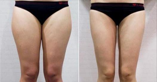 肌肉腿、大象腿有救啦!堅持做一個月,蘿蔔腿消失了,腿變得又直又細,瘦到尖叫!