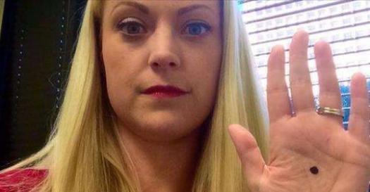 她拍下「手掌心有黑點」的照片後上傳網路,結果隔天警察竟然出現家門口…原因太重要了!